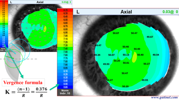this topographic map called axial curvature was obtained using the vergence formula from local curvature data (in mm) and a refractive index equal to 1.376 (refractive index of the stroma) so that it can be compared with the refractive power map (calculated with the same refractive index value for the corneal stroma axial curvature cornéel topography from millimeter to diopter