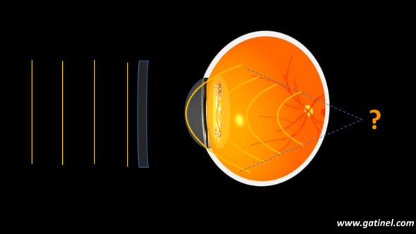 vergence after pseudophakic eye