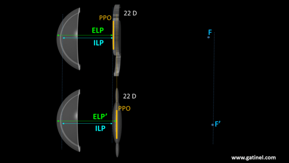 Lens desing and PPO position principal object plane