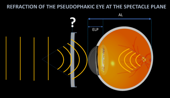 refraction of the pseudophakic eye spectacle plane IOL power